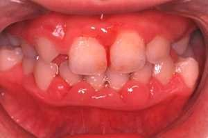 oral-health_img001